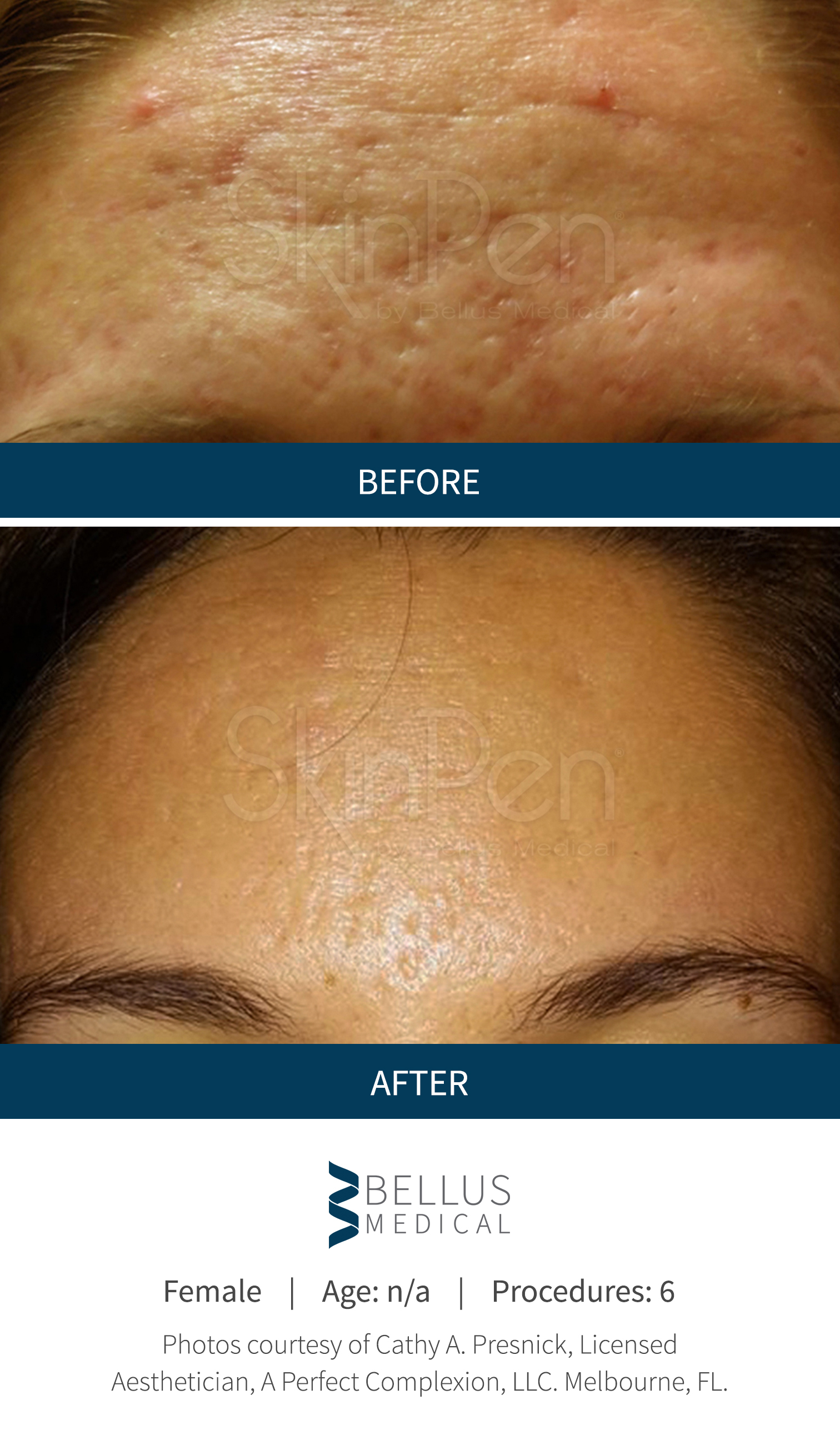 Microneedling Northern VA Before & After